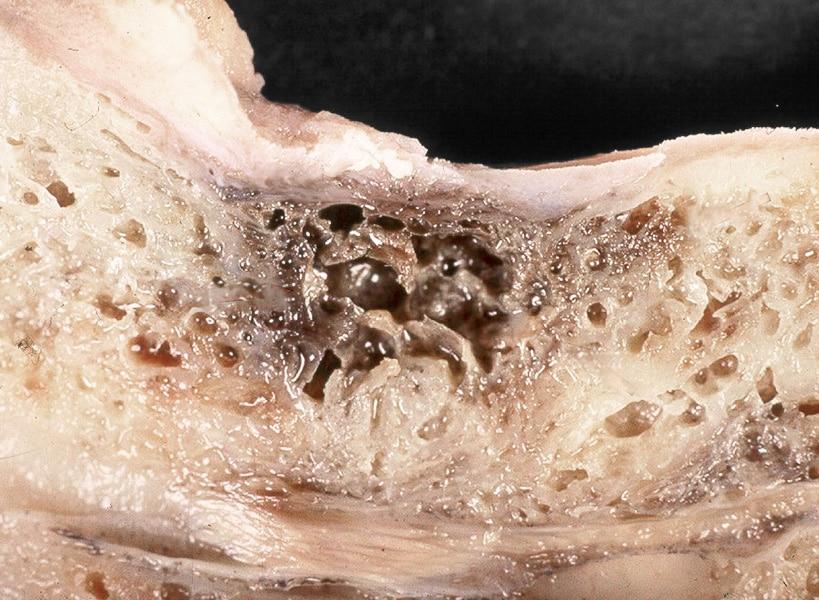 Kawitacja (NICO - neuralgia-inducing cavitational osteonecrosis) to tłuszczowa martwicza zmiana w kości, która może być ogniskiem zapalnym.
