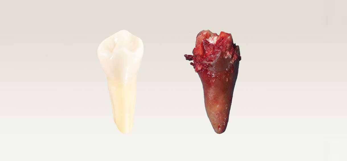 Zęby martwe kanałowe