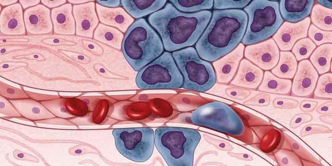 Zapalenie przyzębia i nowotwory