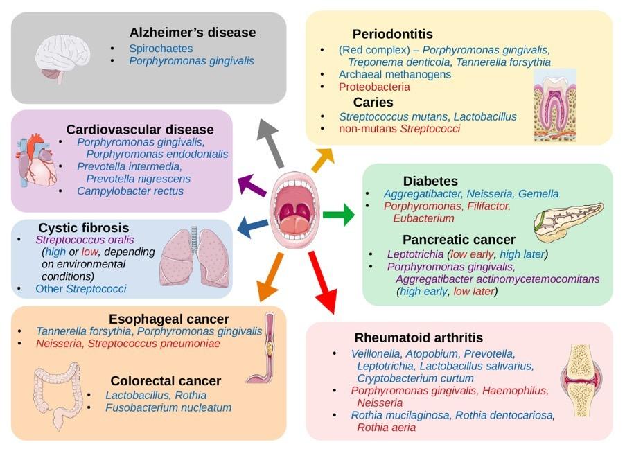 Dysbioza mikrobiomu