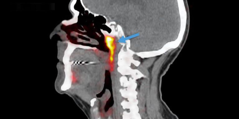 Odkrycie nowej ślinianki - ślinianki trąbkowe