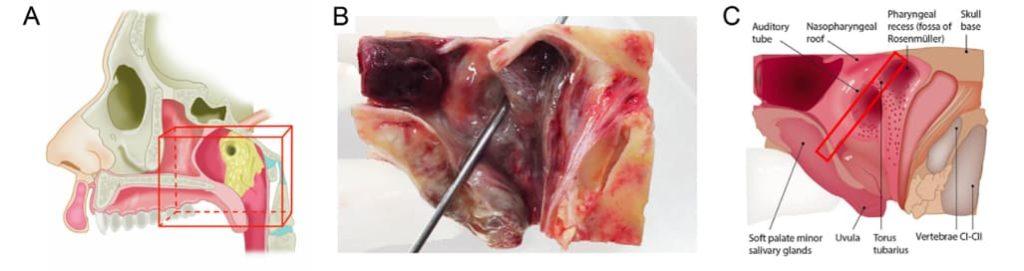 Sekcja i hostologia ślinianek