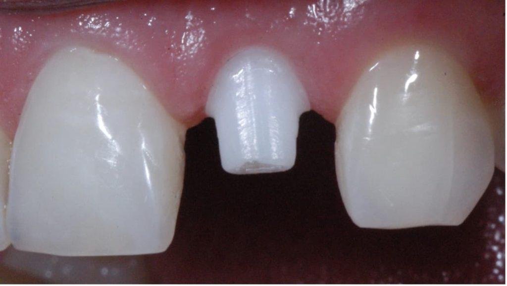 Zagojone dziąsło po założeniu implantu ceramicznego