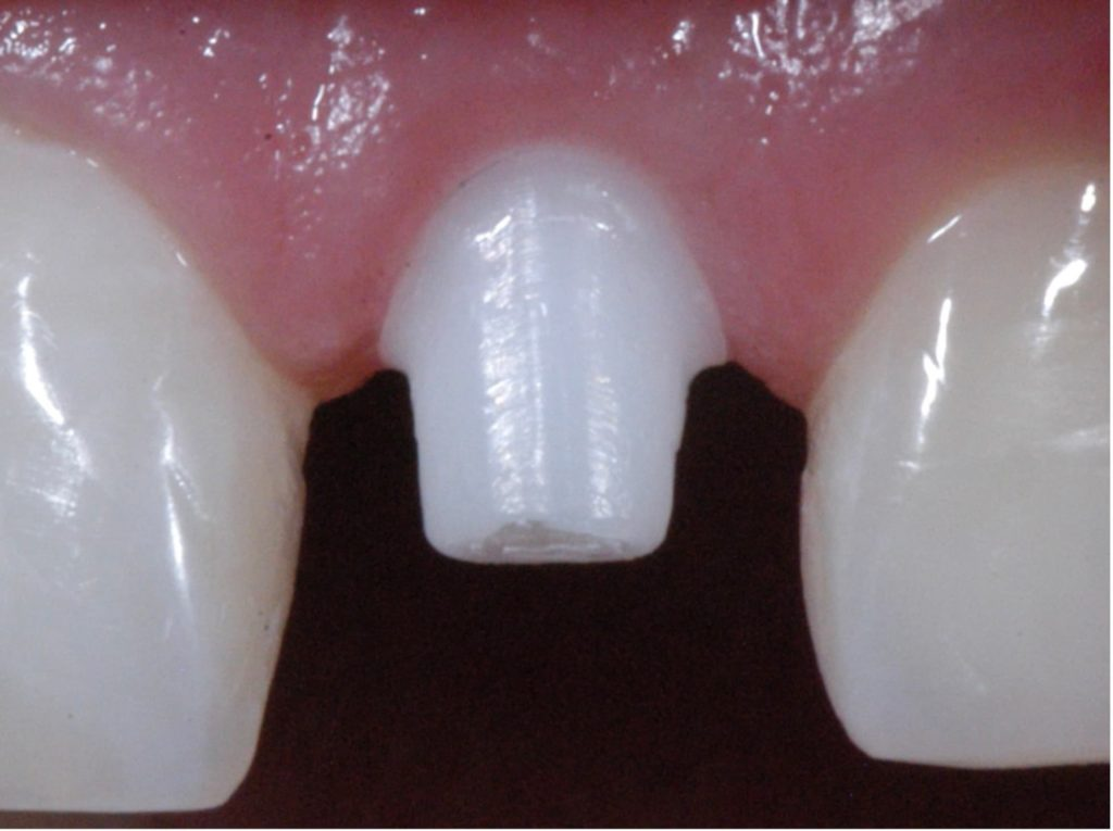 Wkręcony implant ceramiczny