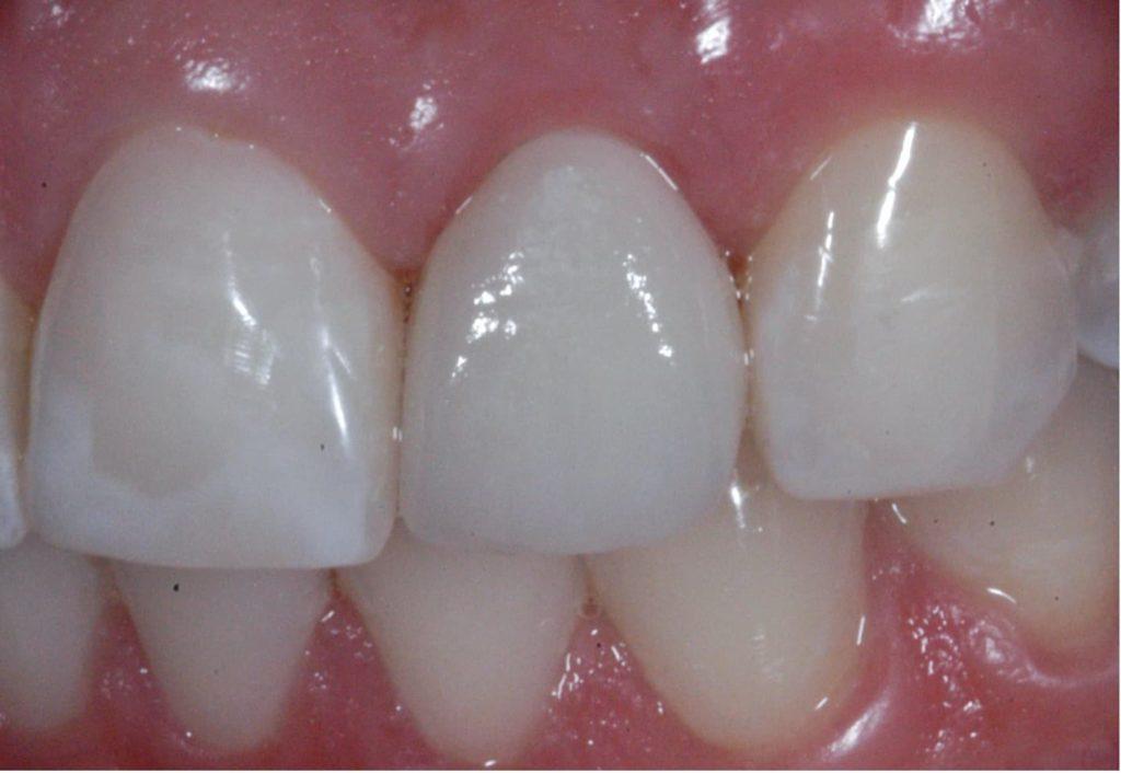 Implant ceramiczny po zacementowaniu korony ostatecznej